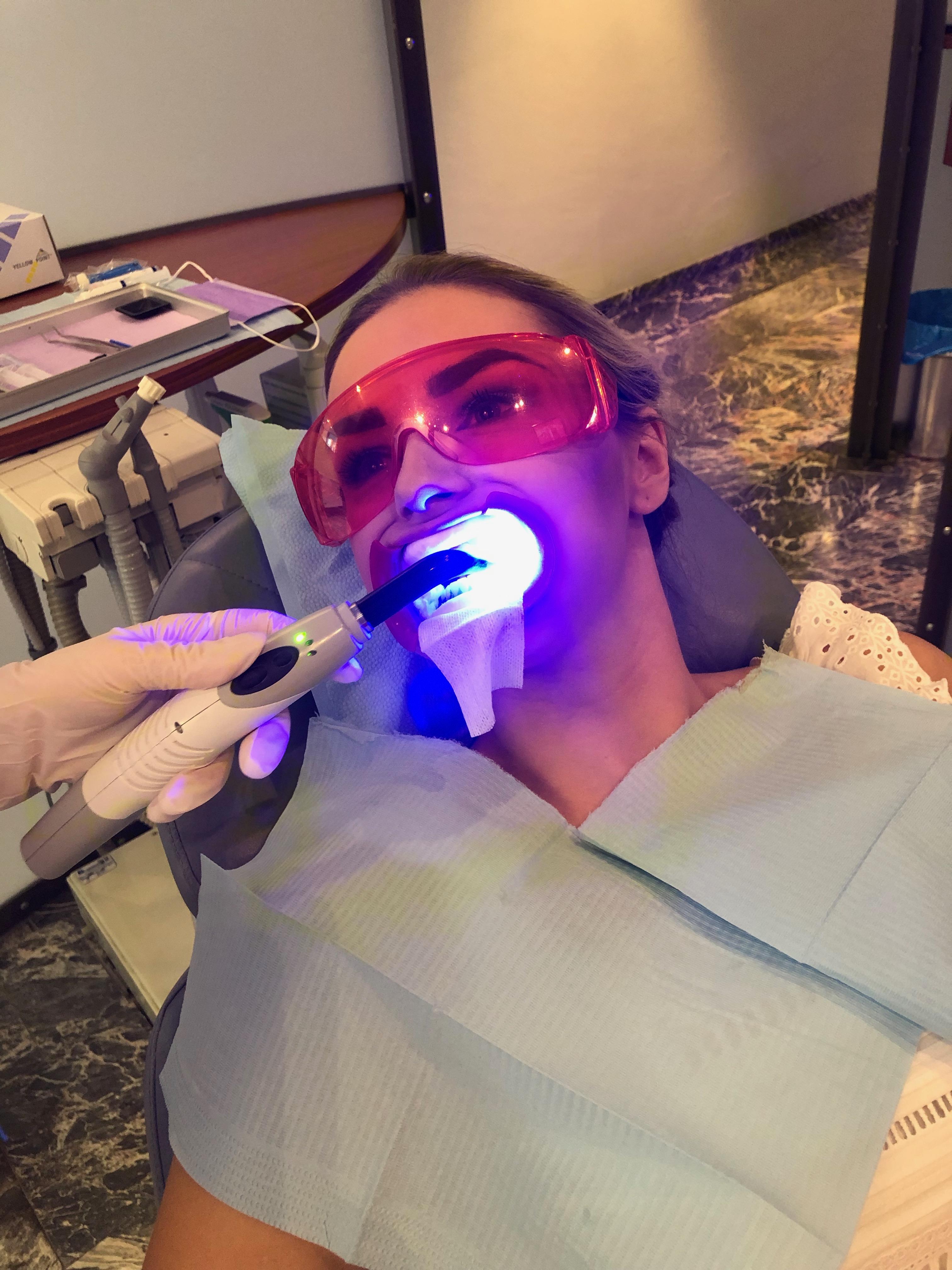 Tanden Bleken bij Praktijk WIT!