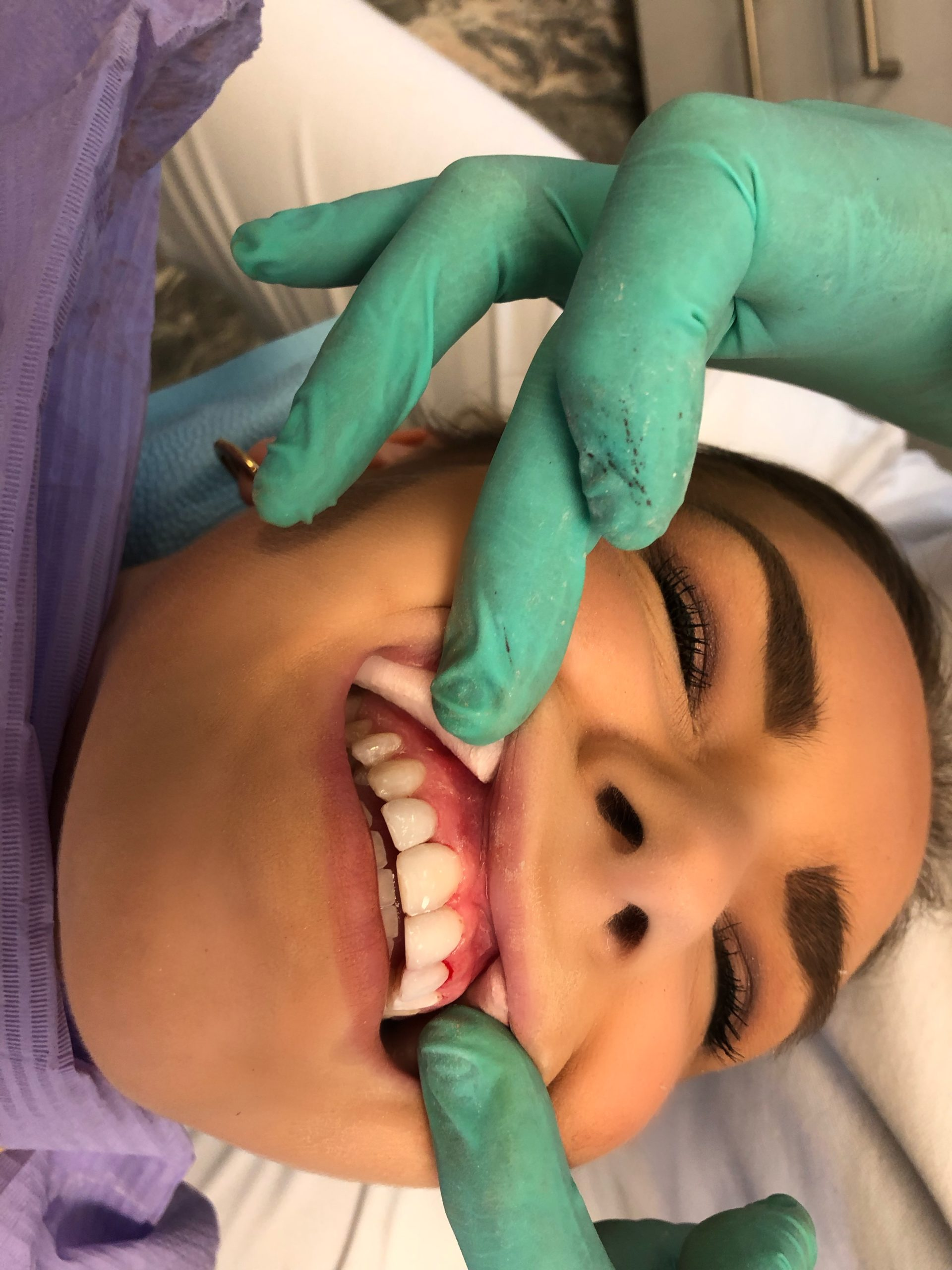 Facings Vervangen Bij Tanndartsenpraktijk WIT